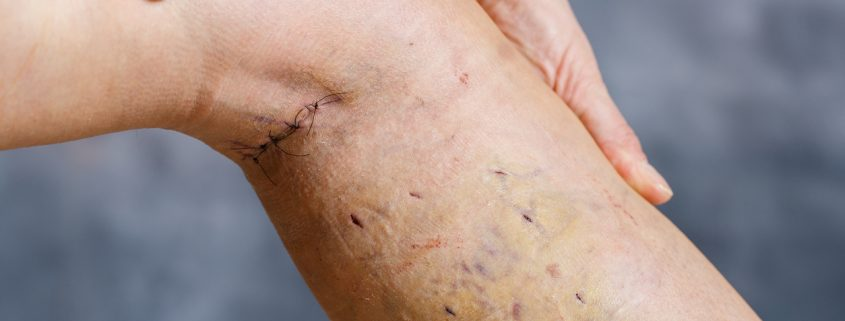Venous Ablation | Endovenous Ablation Medical Malpractice